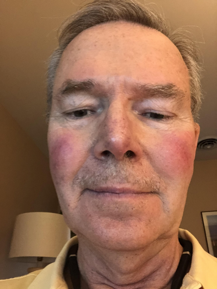 Week 1 - A little dirt on my lip!  Please donate today!!